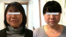 Small face correction treatment: confirmation of effect: Japan Small Face Correction School